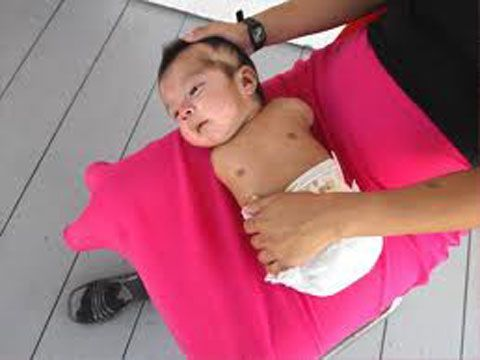 Chemical warfare: the horrific birth defects linked to ...