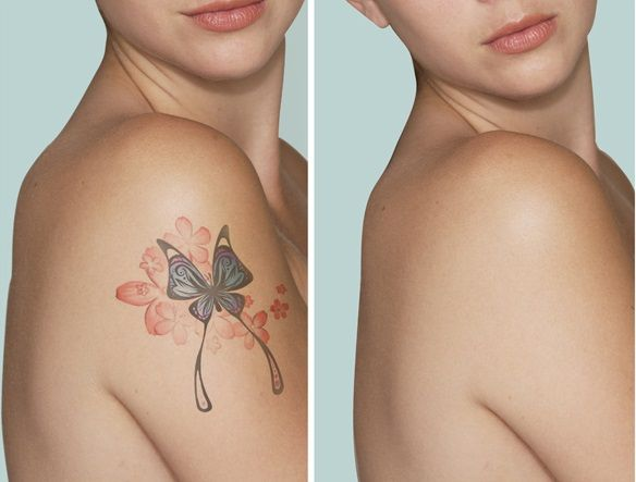 Explore Natural Tattoo Removal Top Tattoos And More