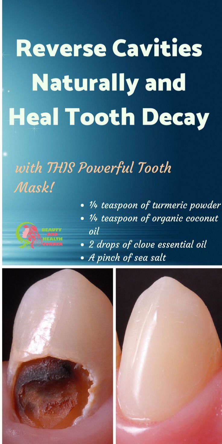 Remineralize And Regrow Tooth Enamel  Naturally