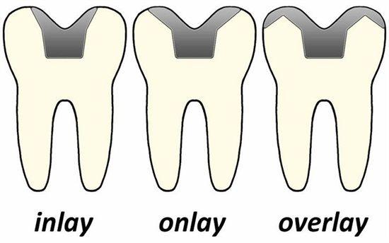 Inlay, Onlay Overlay 3 maneras diferentes de restauración indirecta según el nivel de destrucción dentaria que le alargará la vida a su dentadura. Dudas? Visitanos y te sorprenderás