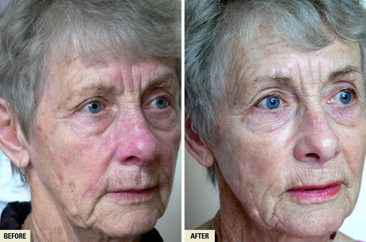 Quoteko Com Rosacea Treatment Intense Pulsed Light Rosacea