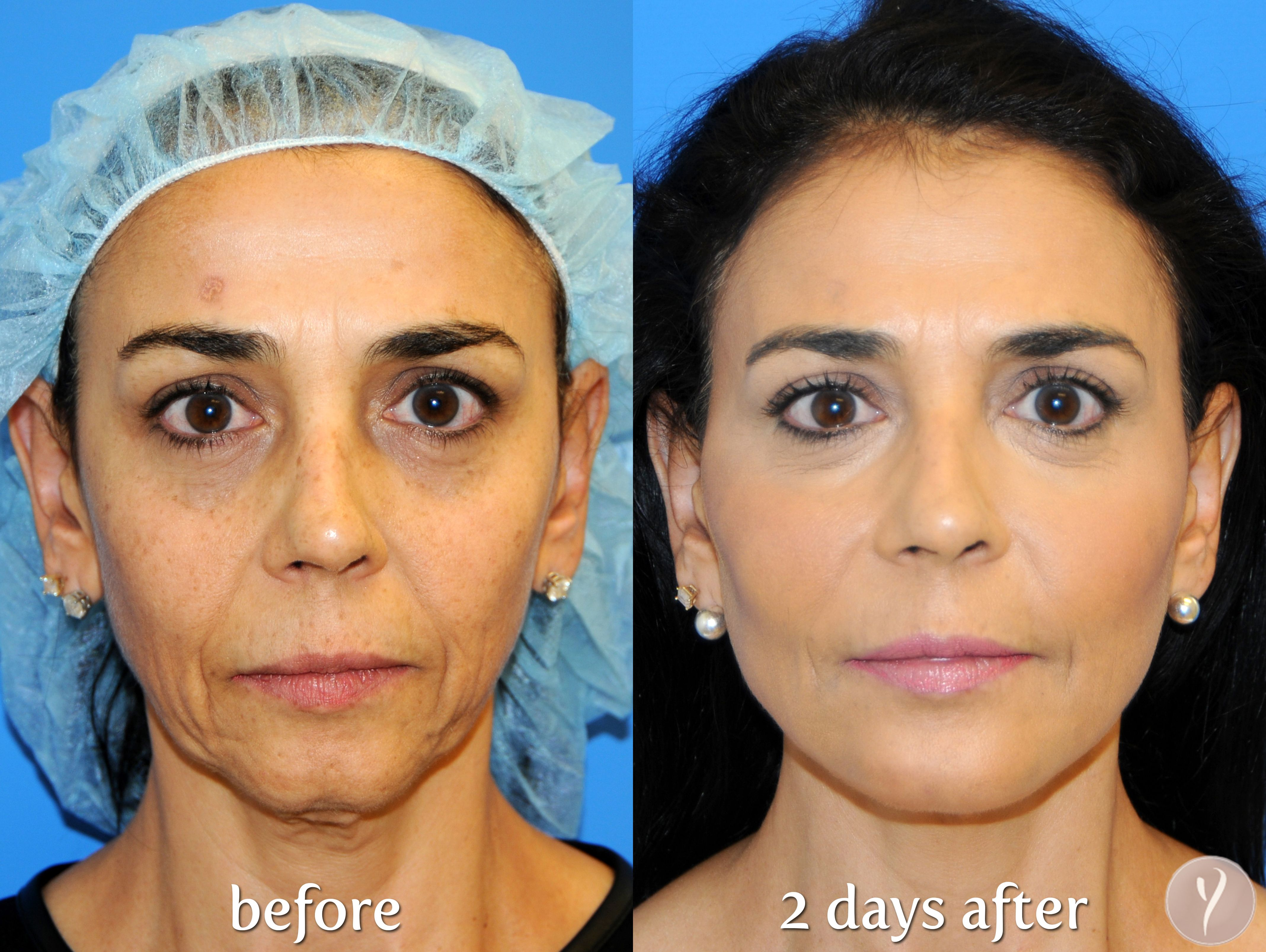 Y LIFT® - The Non Surgical Facelift: Transform Yourself! At
