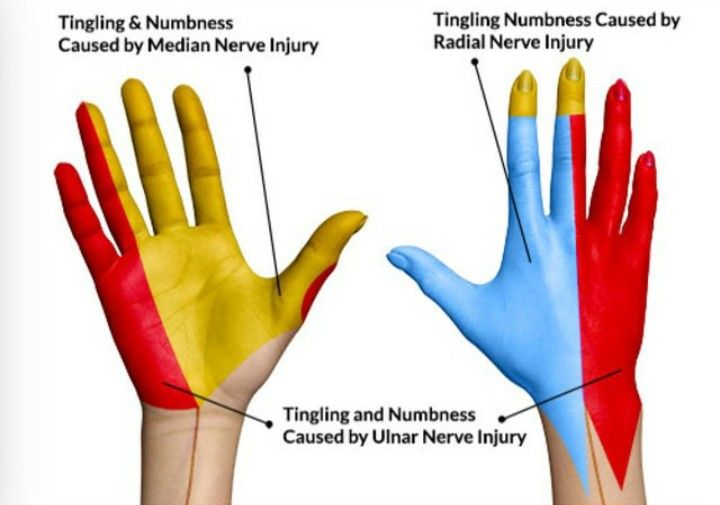 Nerves Of The Hand Medicine Pinterest Medicine