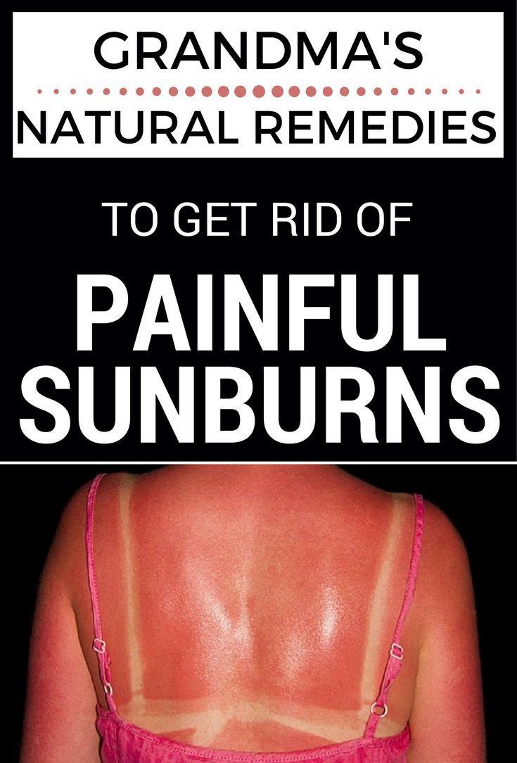 grandma's natural remedies to get rid of painful sunburns