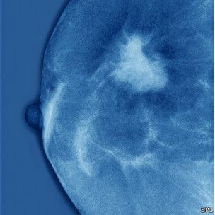 Científicos en EE.UU. y Canadá descubrieron por qué la gran mayoría de los cánceres de mama se producen en los conductos que llevan leche desde la mama hasta al pezón. El resultado los dejó perplejos.