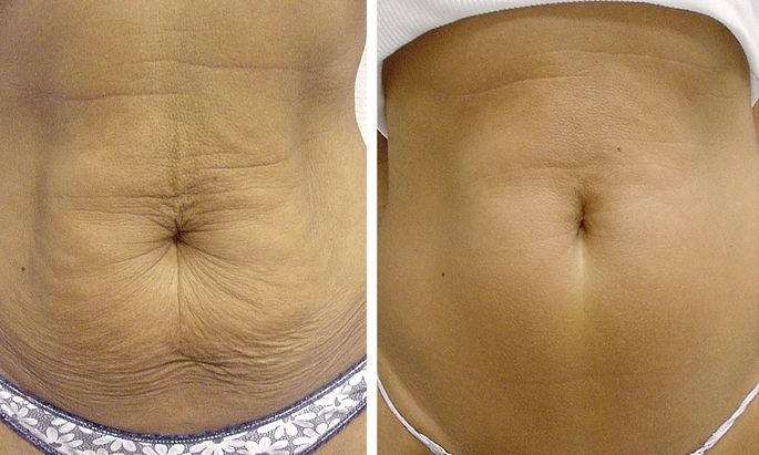How To Tighten Flabby Skin After Weight If You Loose Weight Too Fast