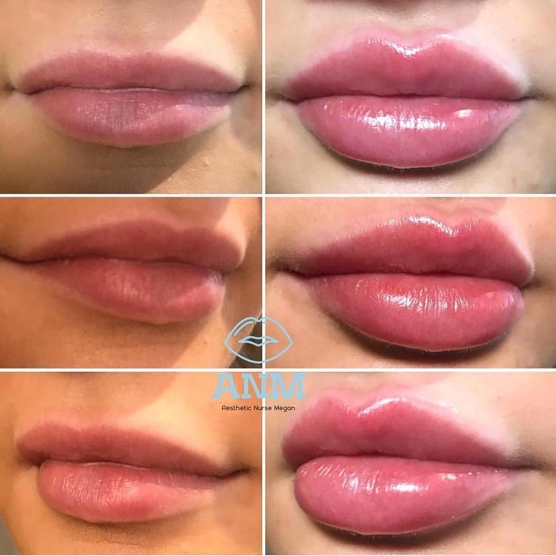 Before and after 2 treatments of lip filler bookings