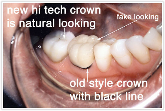 Like Dental Crowns Before And After Root Canal Teethwhiteningathome Dentalcrownsbeforeandafterlasvegas Dental Crowns Dental Affordable Dental
