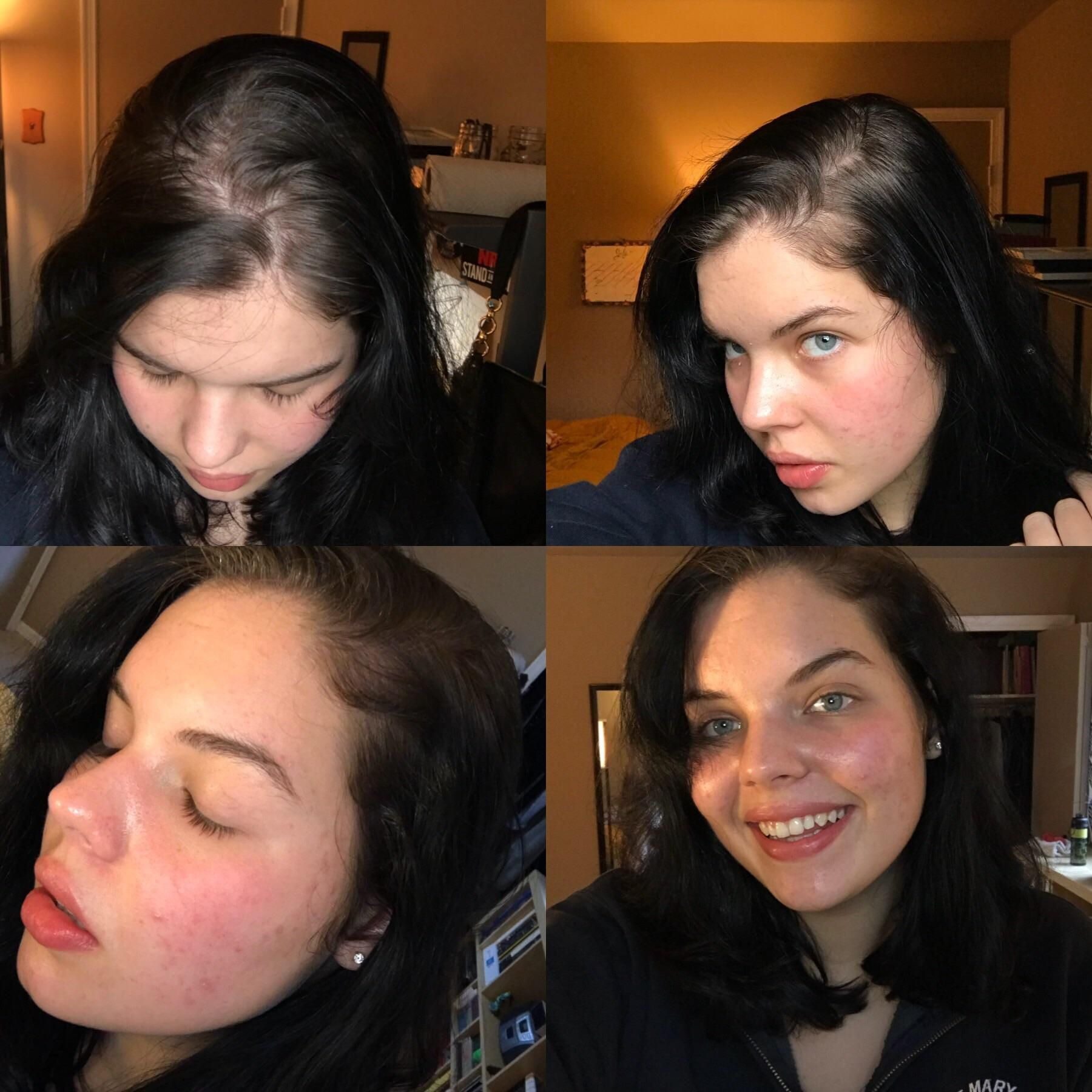 Advice Wanted Growing Out Black Dye Makes Roots Looks Gray Nonexistent How To Grow Out Dye Gracefully Is Bleach An Grow Black Hair Black Hair Dye Roots Hair