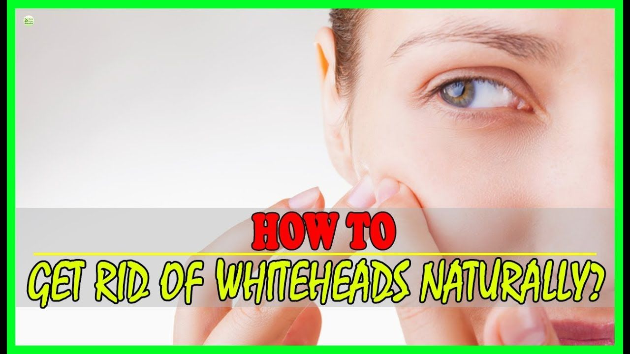 How to get rid of whiteheads at home fast home remedies
