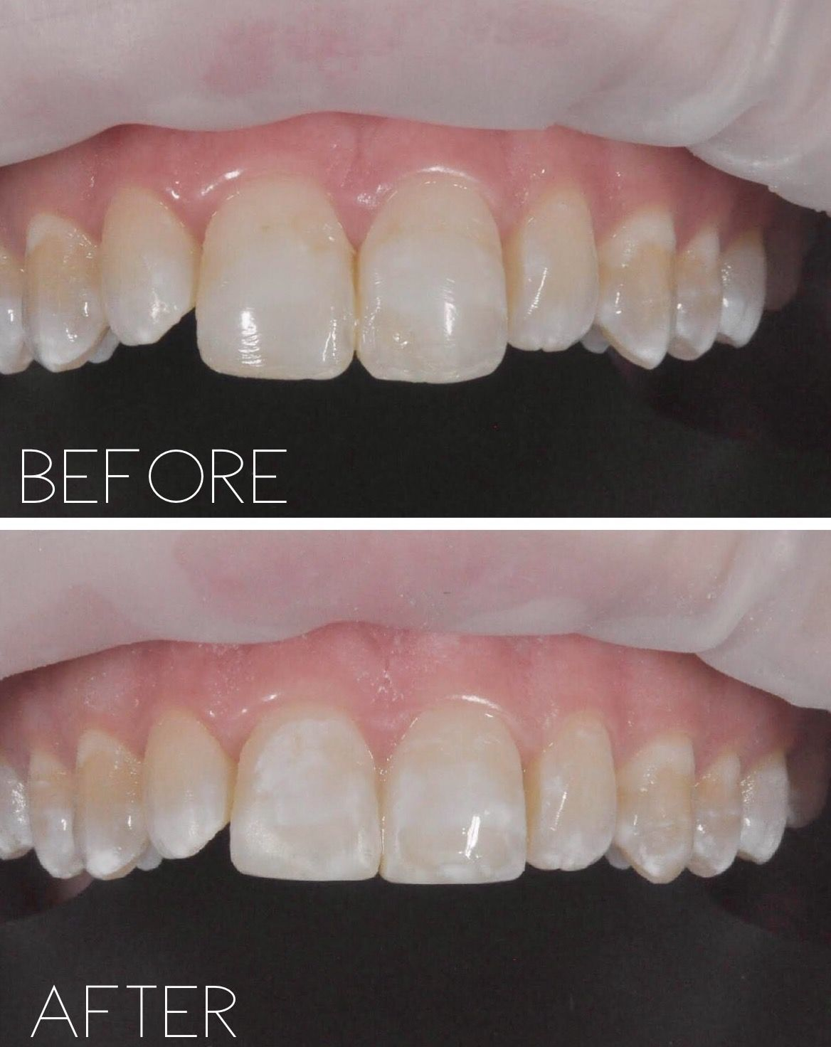 Our Patient In This Before And After Had Odontoplasty Selective Level Out Upper Front Teeth Took 5 Mins With A Great Result Front Teeth Teeth