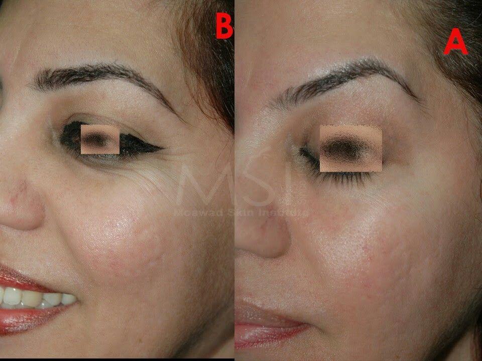 Botox Eye Brow Lift Botox Brow Lift Brow Lift Surgery Botox