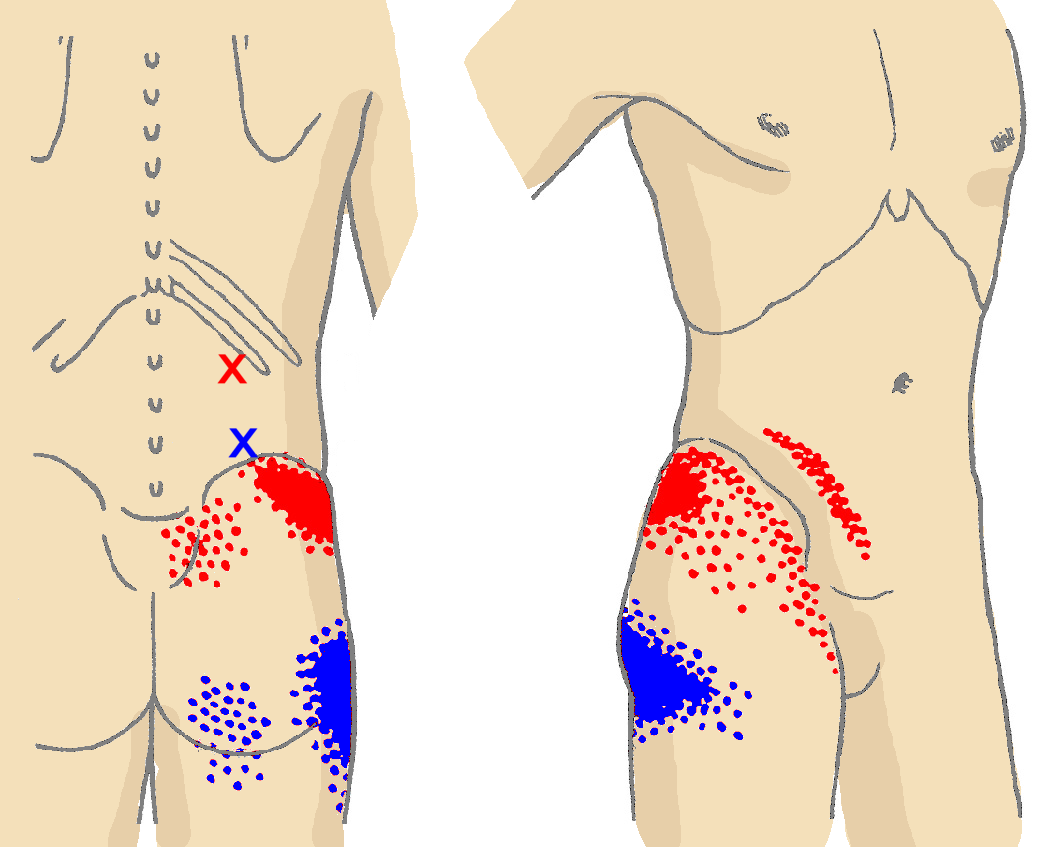 muscle melt patch qty 4 diagram thighs and muscles