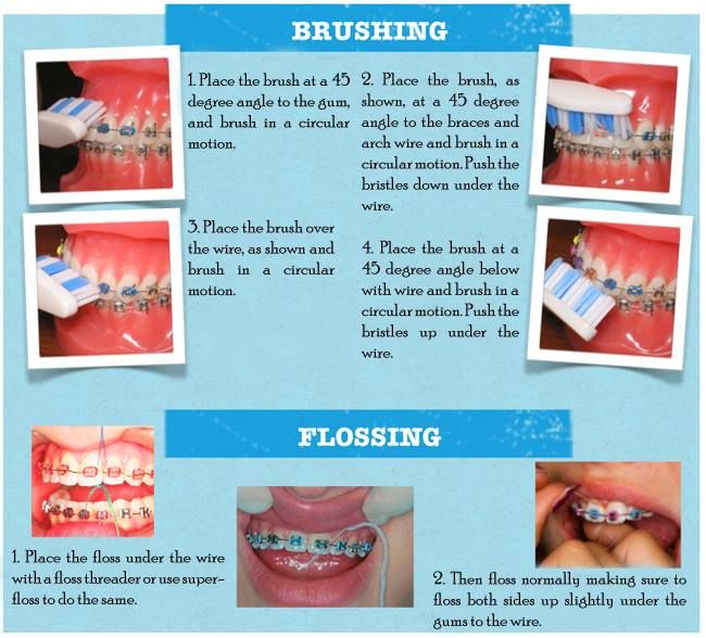 Use fluoride toothpaste and brush approved by your orthodontist. Do ...