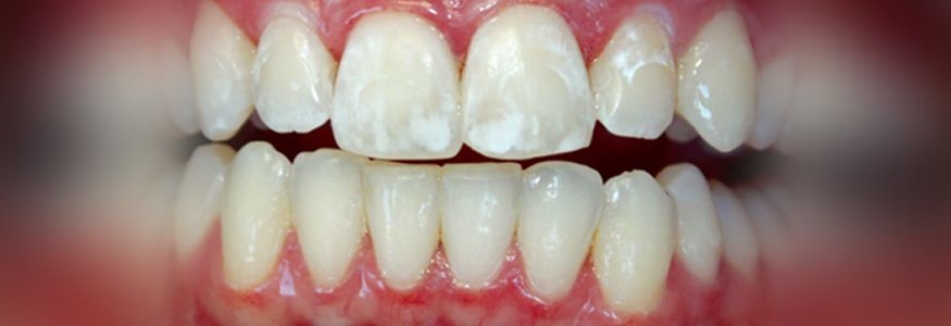 afd71e7f91ec17d131eea1195bd4b98c - How To Get Rid Of White Spot Lesions On Teeth