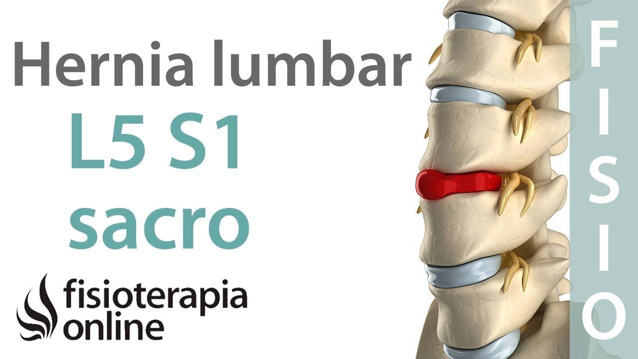 Hernia discal lumbar entre la l5 y s1 o quinta v rtebra lumbar y el sacro videos pinterest - Ejercicios en piscina para hernia discal l5 s1 ...