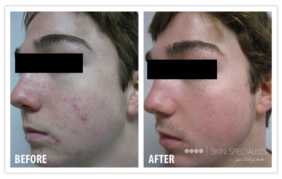 Here's a client who quickly cleared his acne with Skin