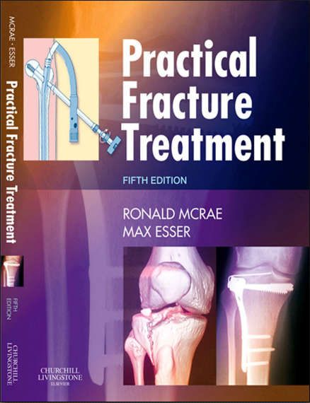 Edition pdf 5th handbook of fractures