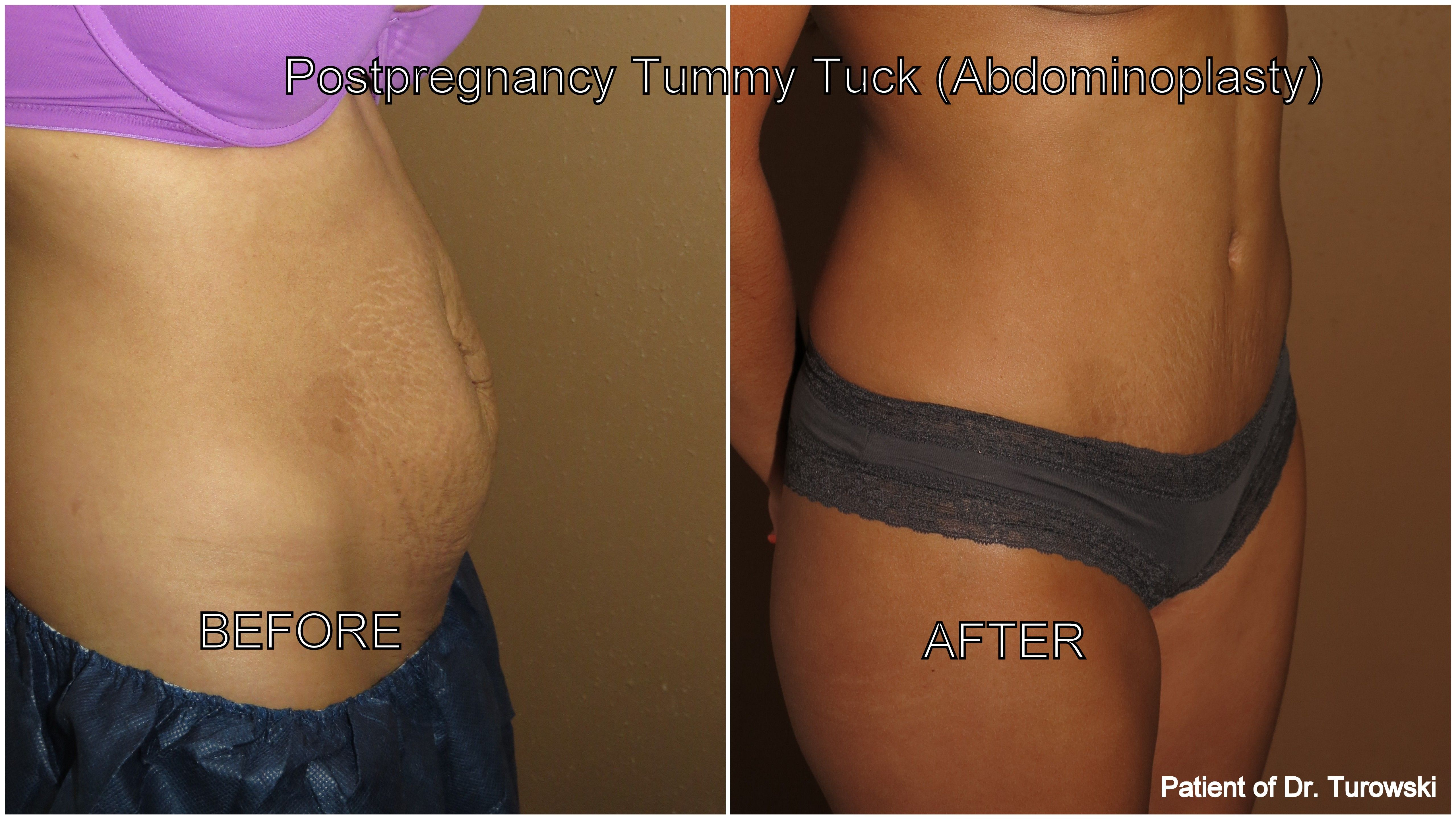 Pin by Dr  Gregory Turowski on Tummy Tuck Chicago | Tummy tucks, Chicago