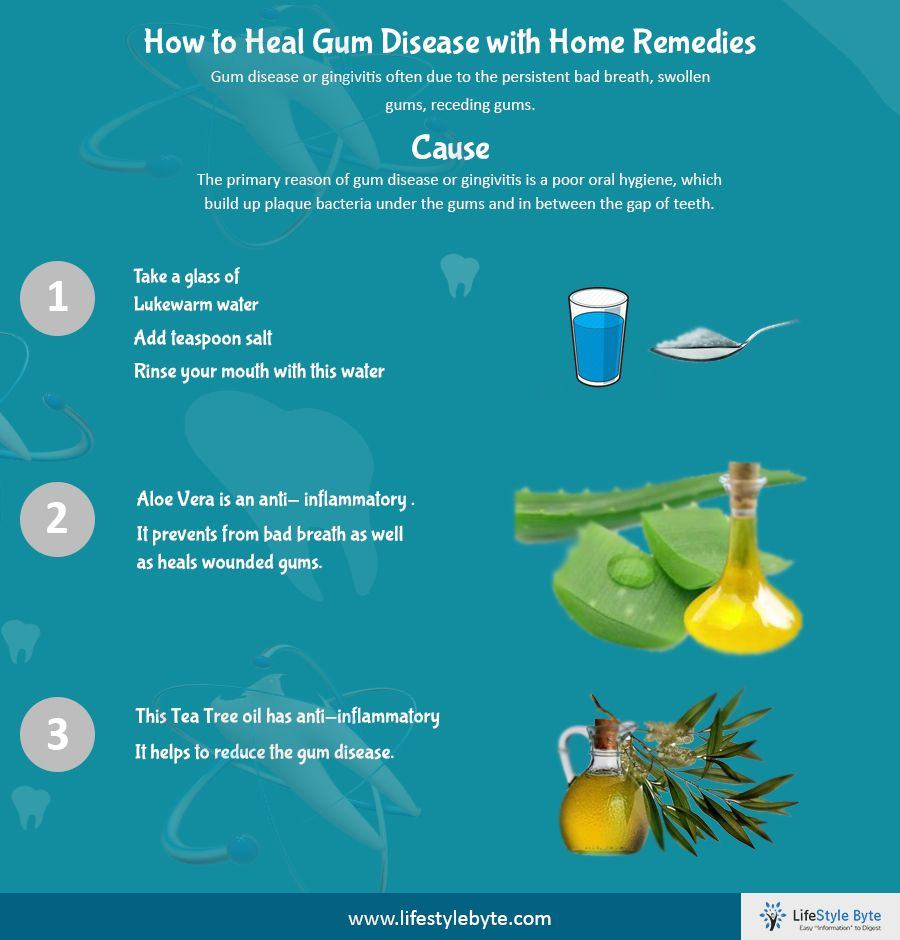 how to treat periodontal disease at home