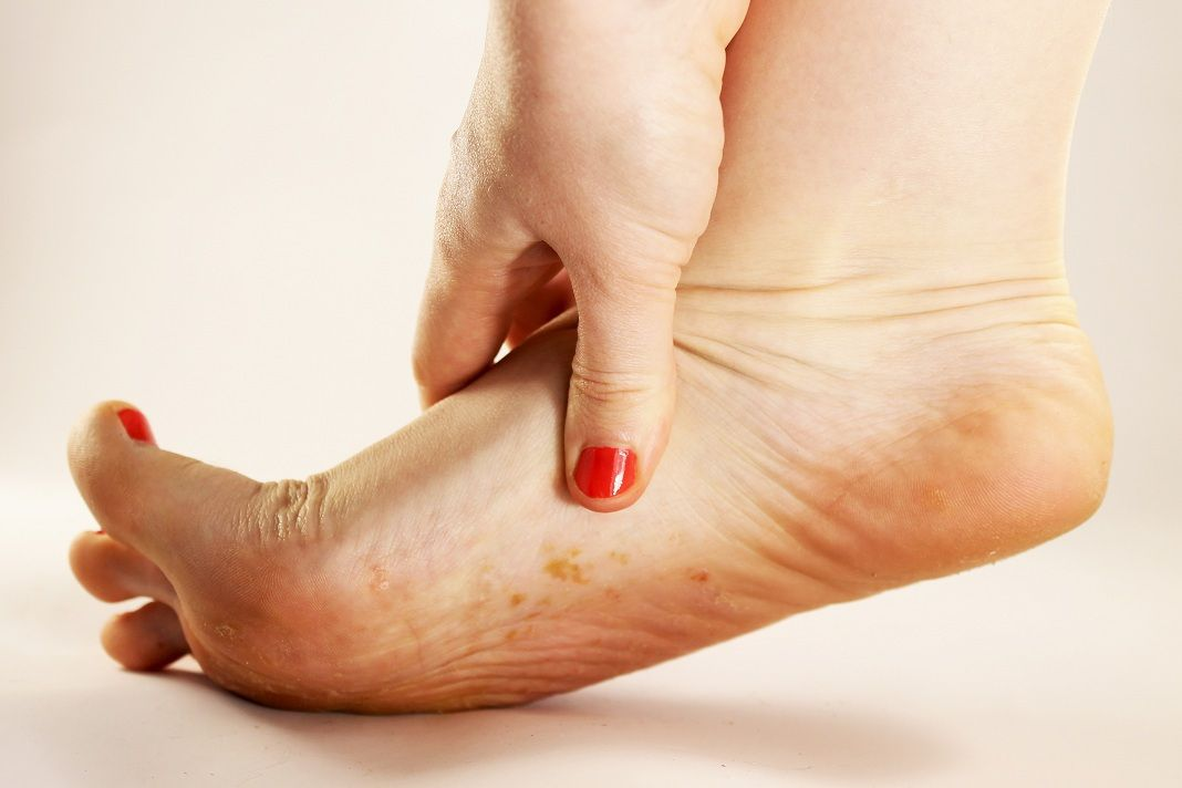 Fungal Infection Natural Remedies Top 5 Ways Remedies Toenail
