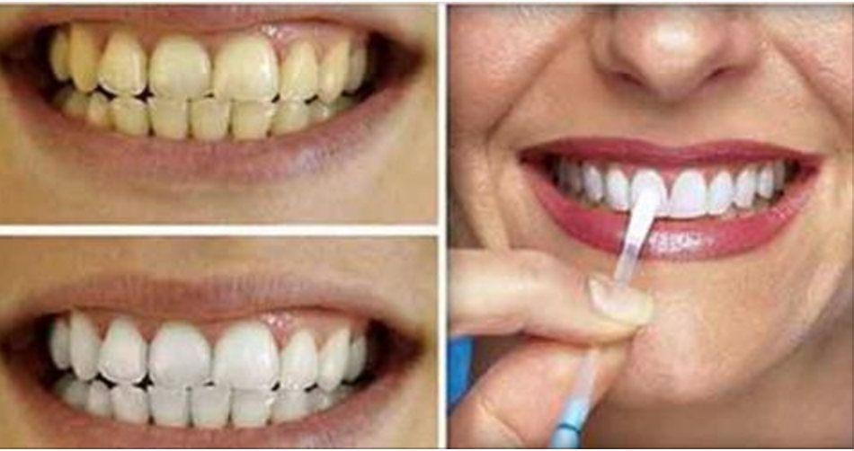 Esta E A Forma Mais Simples E Barata De Clarear Os Dentes Em Casa
