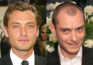 Jude Law Hair Transplant Bizarre In 2019 Hair
