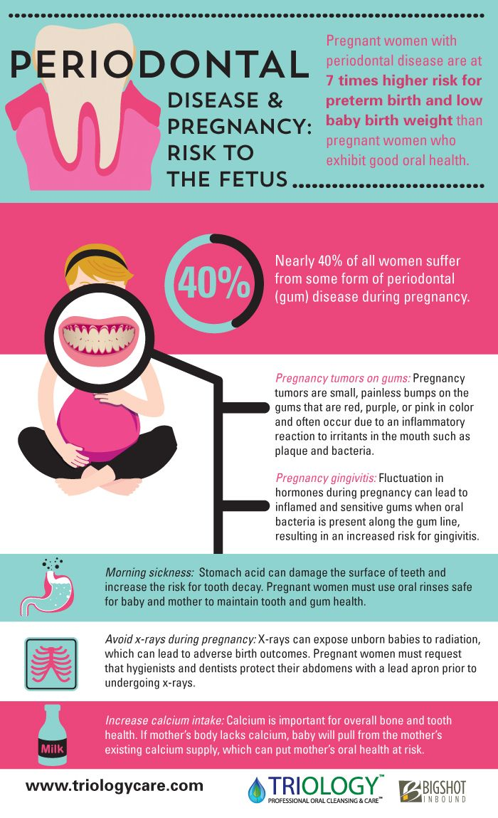 Dental problems during pregnancy, Is it safe to do root canal during pregnancy foto