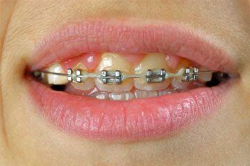 How To Whiten Teeth With Braces Homemade Teeth Whitening Teeth