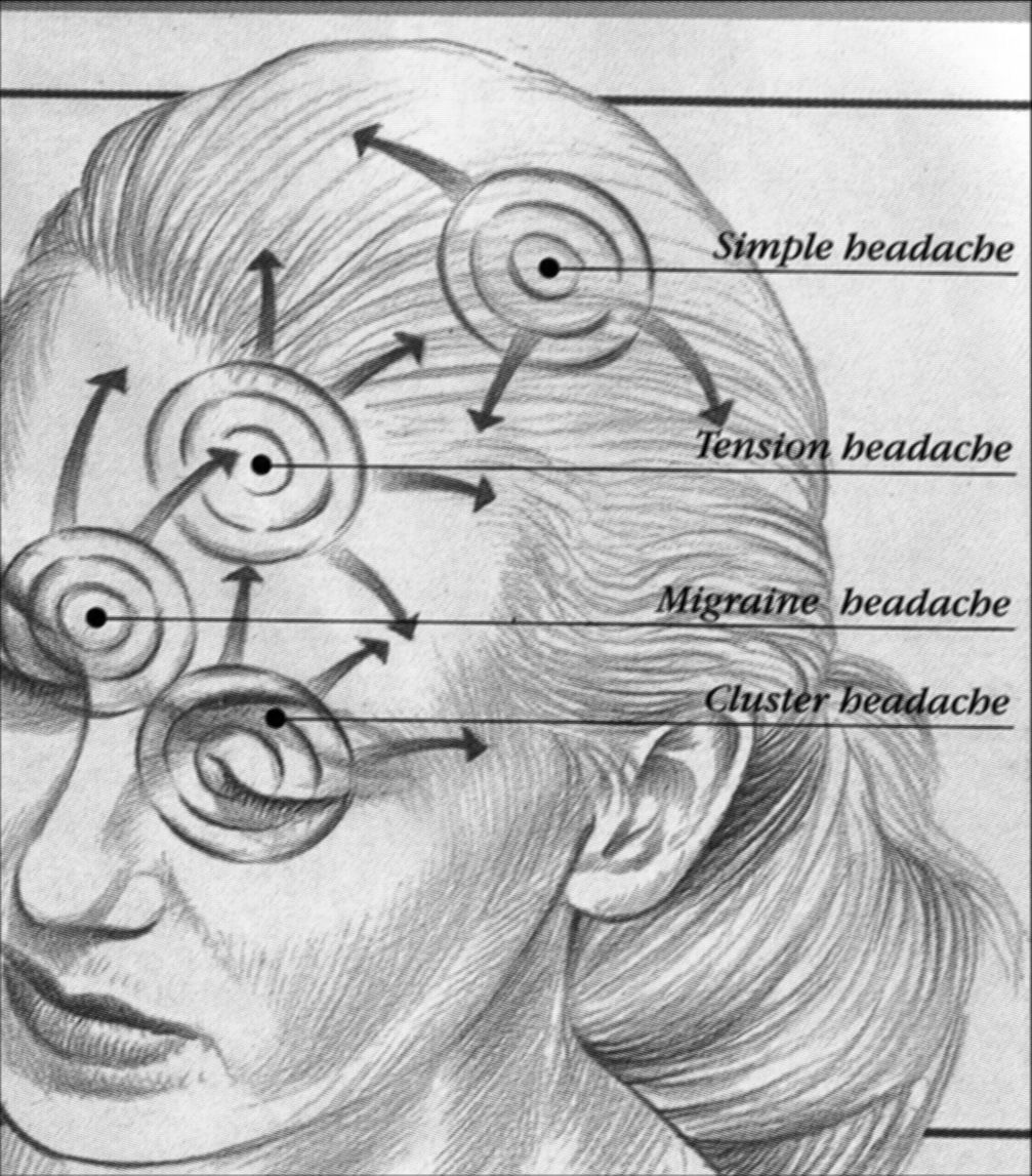Headaches-Stress-Tension Headaches-Relief For Headaches