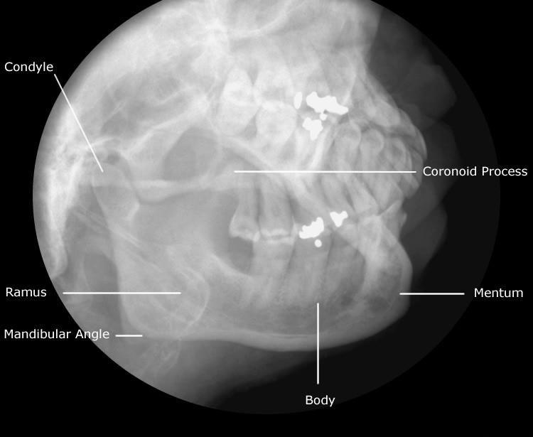 Ray Diagram Digital X Ray Machine Diagram For Pinterest