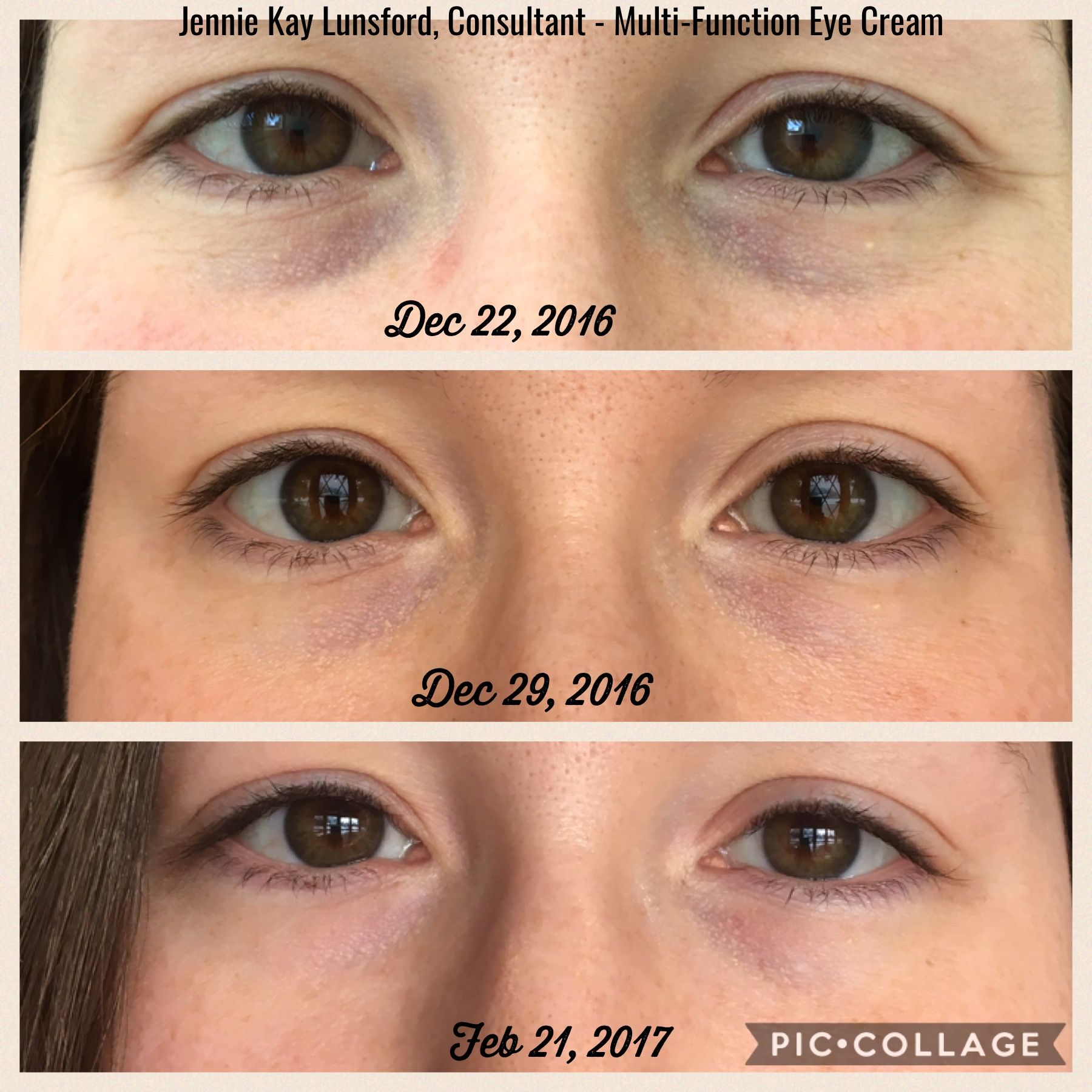 My Personal Multi Function Eye Cream Results Eye Cream Cream Eyes