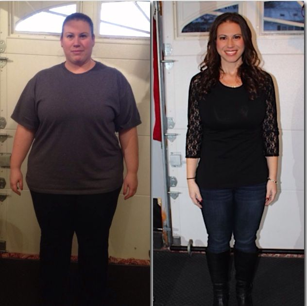 Extreme Weight Loss Success Story Lap Band Surgery Michelle
