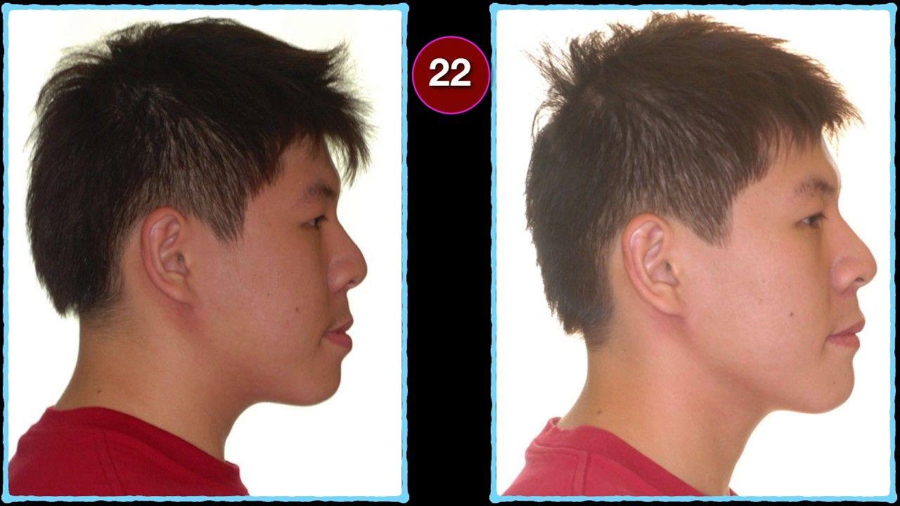 Rhinoplasty Rhinoplasty surgery, Rhinoplasty