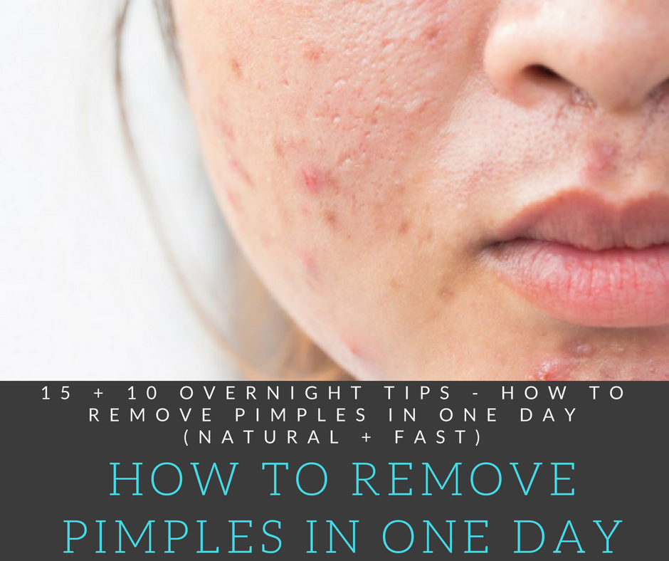 b0234e0b22de74f1ff01b107e5dd21a2 - How To Get Rid Of Pimples Fast In One Day
