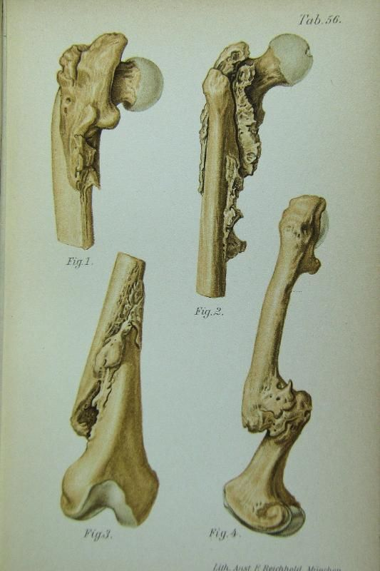 Atlas and Epitome of Traumatic Fractures and Dislocations (https://www.pinterest.com/pin/287386019949513892). Heinrich Helferich 1902, W.B. Saunders & Co.