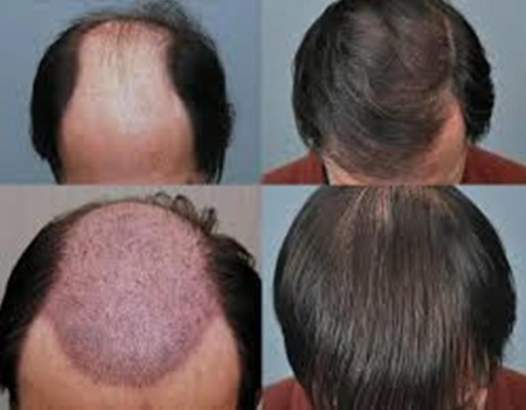 hair loss treatment Irving
