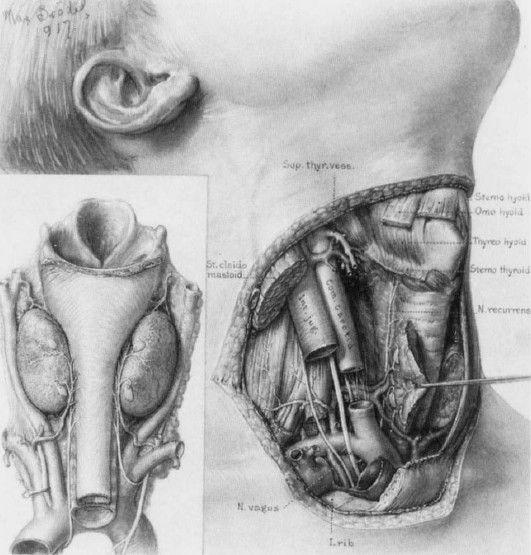 Danablu Thyroid Disease Thyroid Medical Illustration