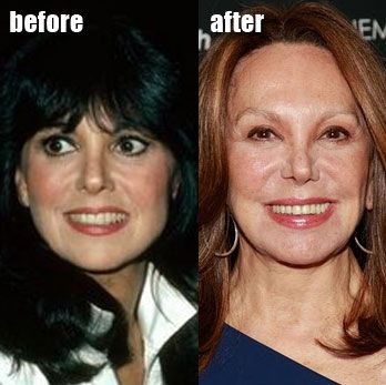 608 Best Plastic Surgery gone Wrong! images | Bad plastic ...