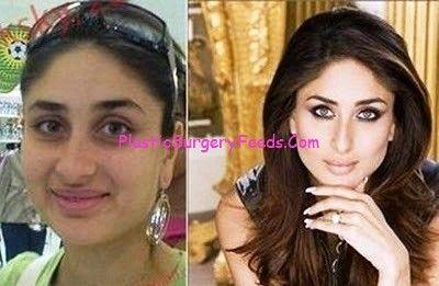 Kareena Kapoor Plastic Surgery Before And After Face Bollywood Actress Without Makeup Actress Without Makeup Celebs Without Makeup
