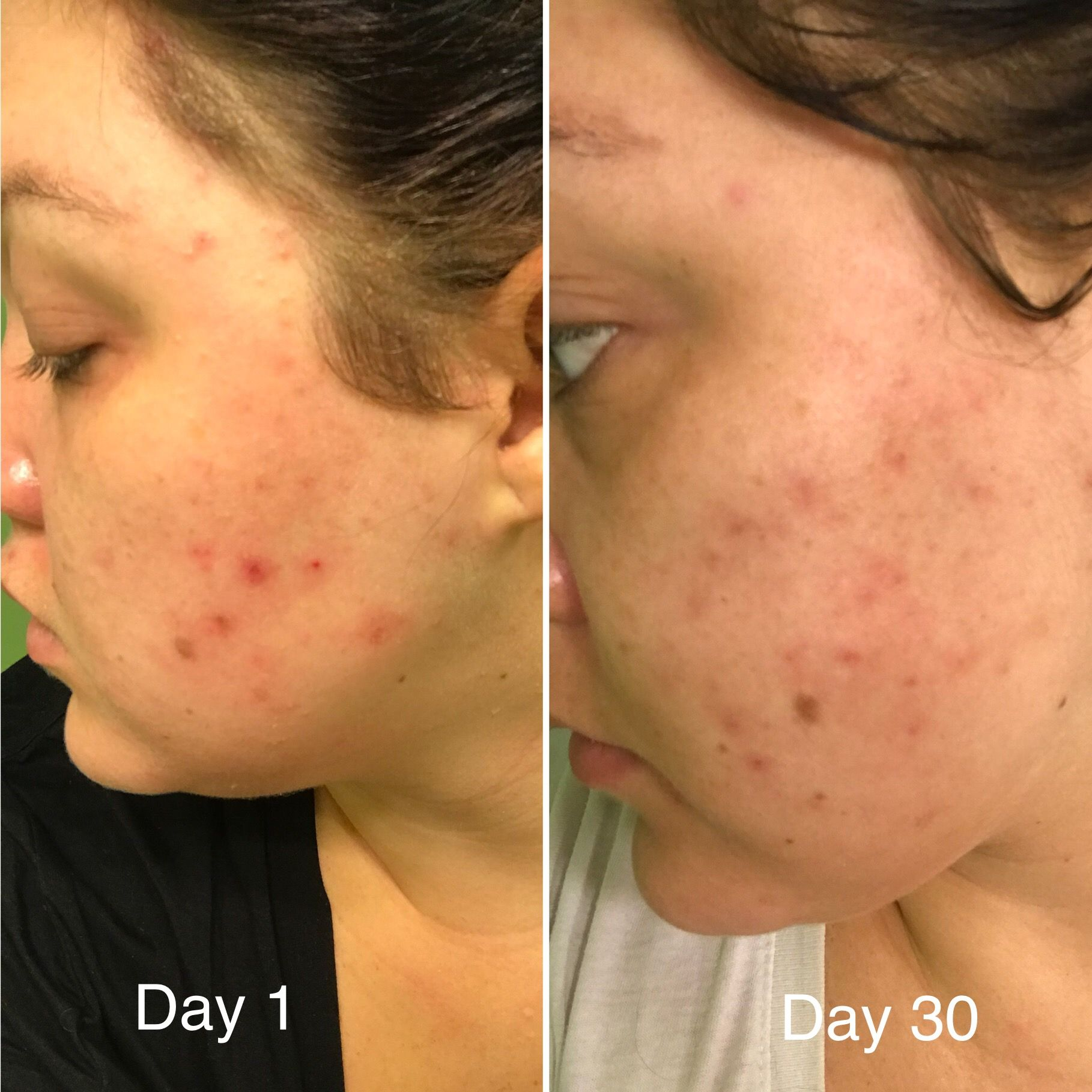 Progress Photos Of My Cystic Acne I Used Limelight By Alcone Skincare Products Morning Routine Dream Clean Skin Therapi Skin Therapist Face Wash Face Oil