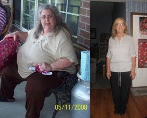 Weight loss centers in virginia beach image 5