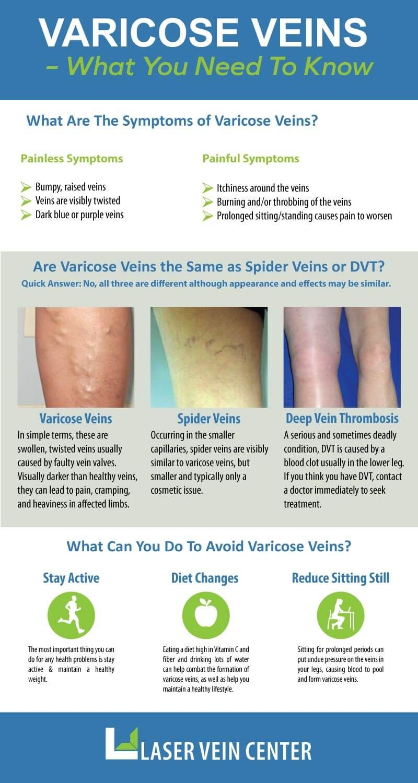 comentarii despre apiterapia varicose