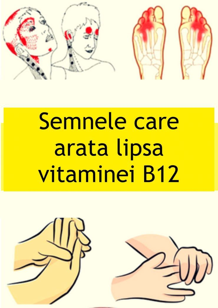 varicoză lipsă de vitamină)