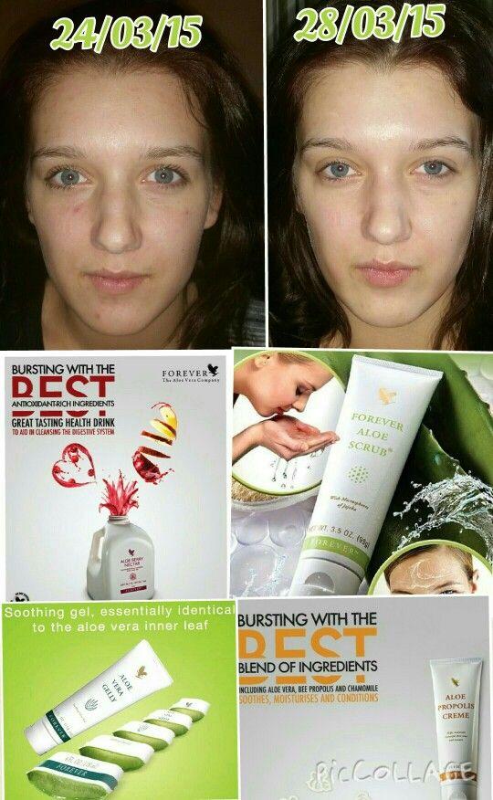 Does aloe vera help acne redness