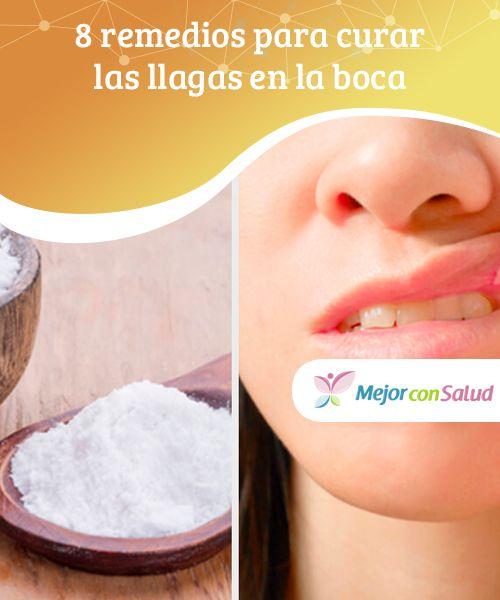 Remedios efectivos para llagas en la boca