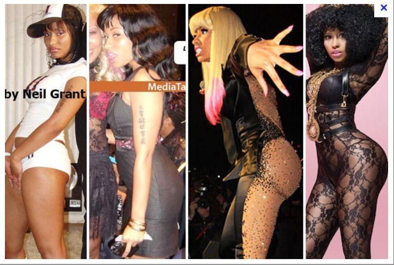 Nicky Minaj Before  After Plastic Surgery  Nicki Minaj-3124