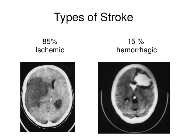 Head CT shows cortical laminar necrosis after stroke.