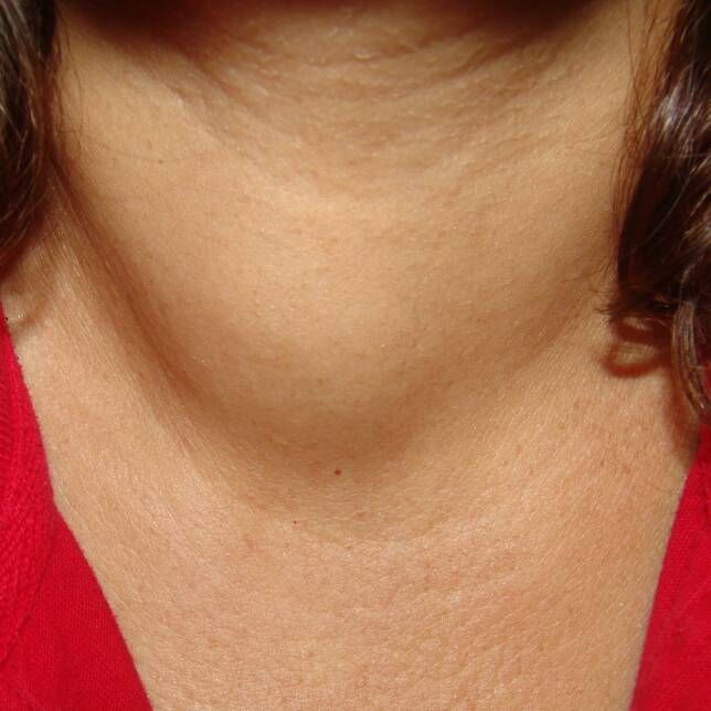 Right Thyroid Nodule This Patient Presented With Dysphagia