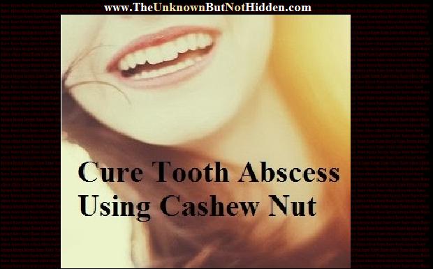 Absurd Oral Care Routine Tips teethwhiteningmiami